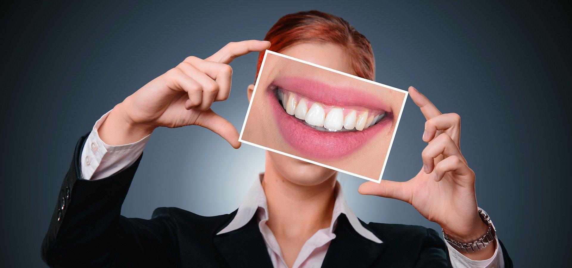 usuwanie kamienia na zębach