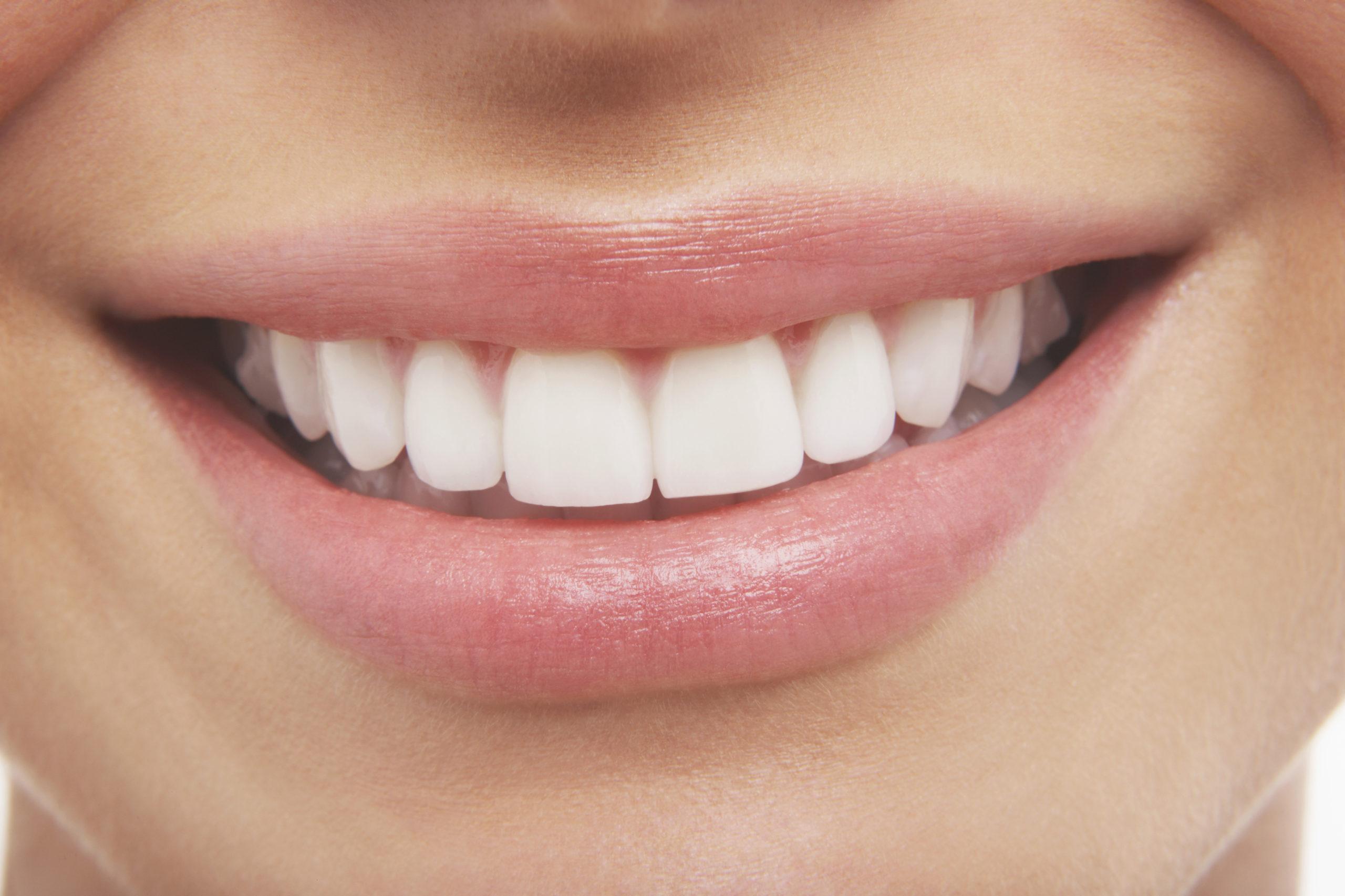 Jak leczyć próchnicę zębów i co to jest