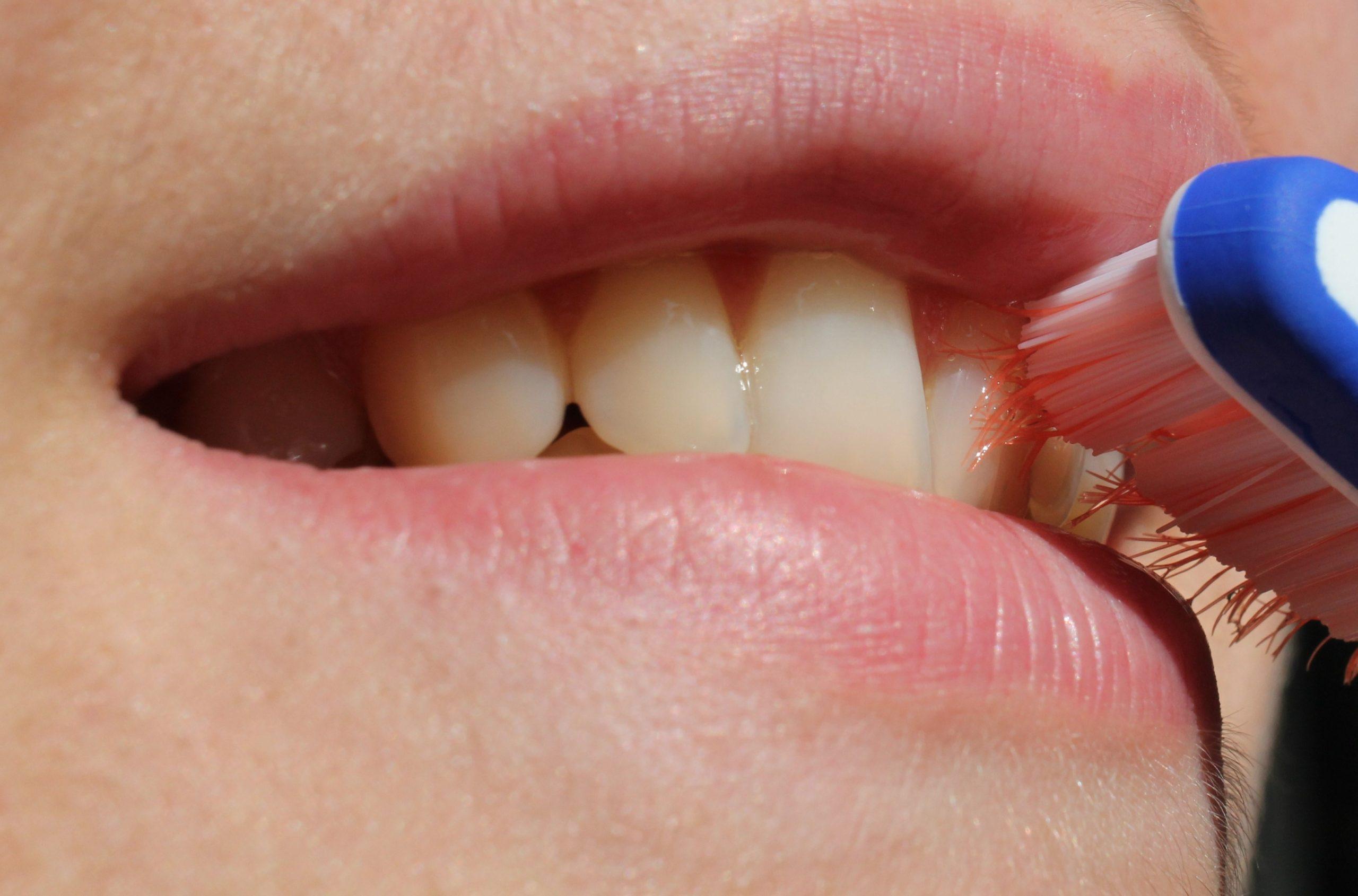 Piaskowanie zębów – czym jest i ile kosztuje