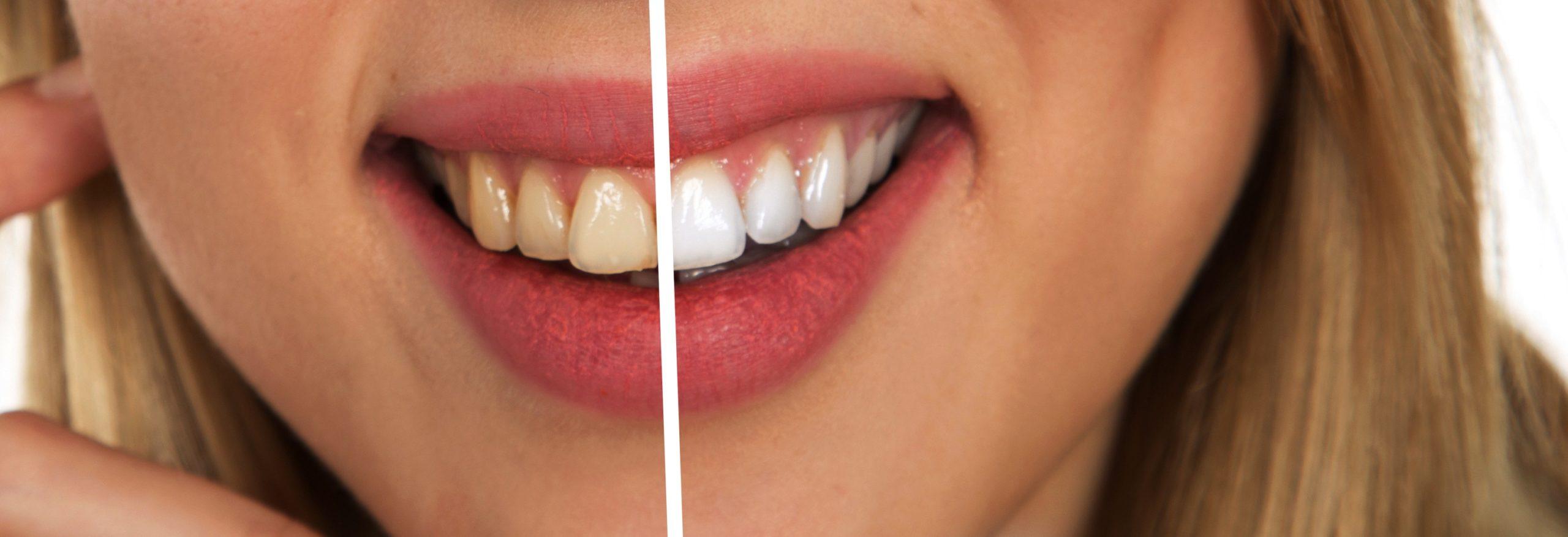Wybielanie zębów – jak to zrobić?